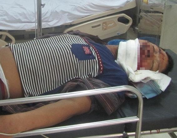 Nạn nhân của vụ tai nạn sập giàn giáo đang cấp cứu tại bênh viện. Ảnh: Dũng Nguyên