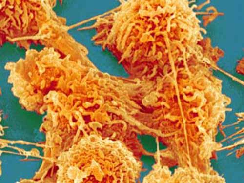Tế bào ung thư ruột kết  Ảnh: THE GUARDIAN