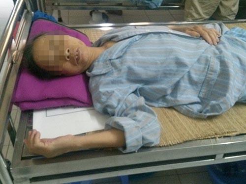 Một bệnh nhân điều trị tại Bệnh viện Bệnh nhiệt đới trung ương do bị côn trùng đốt
