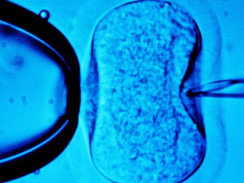 Hỗ trợ sinh sản qua thụ tinh trong ống nghiệm. Ảnh ABC News