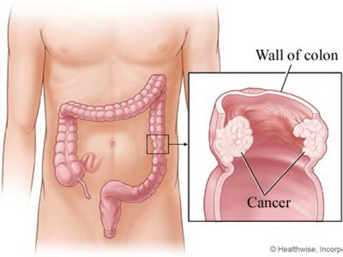 Nghiên cứu mới nêu khả năng phòng bệnh ung thư trực kết tràng của selen