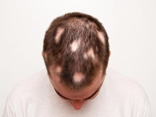 Nghiên cứu mở ra triển vọng trị liệu mới cho chứng hói đầu và rụng tóc từng mảng Ảnh: MNT