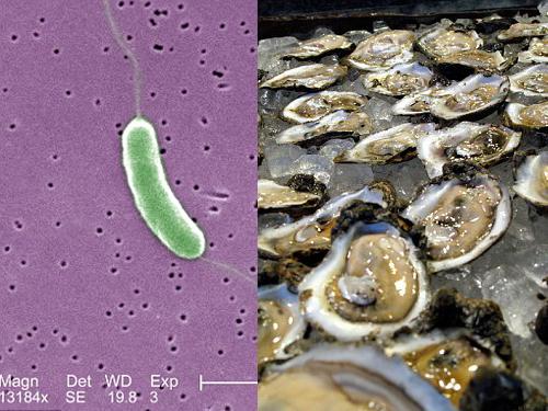 Vi khuẩn ăn thịt người còn được tìm thấy trong các loại ốc, hàu sống