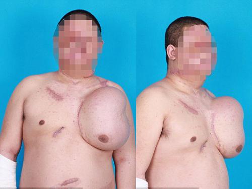 Người đàn ông nuôi mặt bên trong ngực