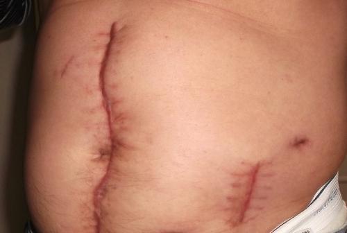 Ông Hà Danh Trí với nhiều vết chém ở bụng từ hơn 6 tháng trước