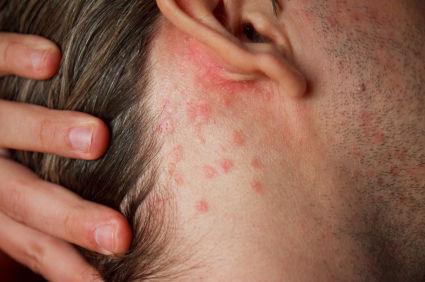 Phát ban đi kèm với sốt, đau khớp, đau cơ, có thể là dấu hiệu báo trước bệnh nội khoa hoặc nhiễm trùng.