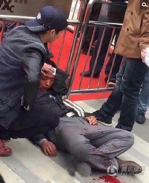 Một người đàn ông bị thương phải nghỉ bên vệ đường