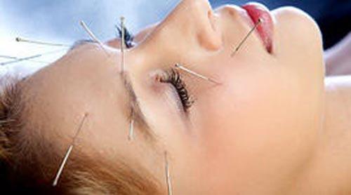 Châm cứu có thể góp phần trị liệu nhiều chứng rối loạn ngoài da Ảnh: CBS NEWS