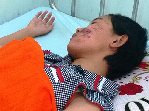Bệnh nhân Nguyễn Kim Ánh đang điều trị tại Bệnh viện Đa khoa tỉnh  Cà Mau