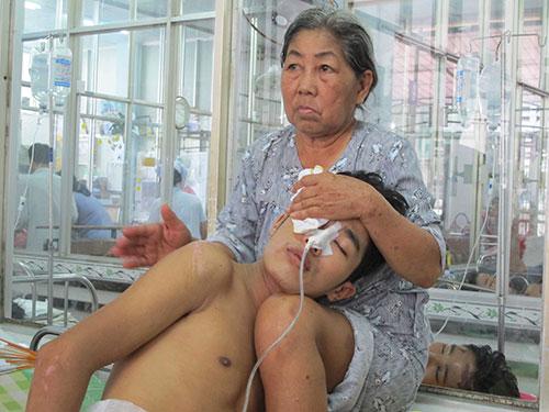 Một người bị tai nạn giao thông đang điều trị tại Bệnh viện Chợ Rẫy Ảnh: PHẠM DŨNG