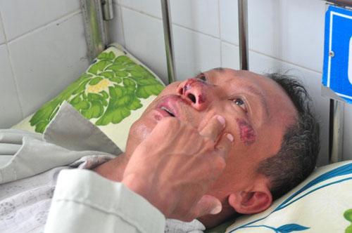 Ông Trương Quang Châu đang điều trị tại bệnh viện