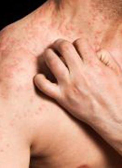 Bệnh chàm có thể ảnh hưởng đến sức khỏe tim mạch qua lối sống của bệnh nhân. Ảnh: HealthDay News