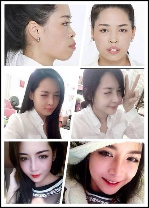 Vũ Thanh Quỳnh trước và sau khi giải phẫu thẩm mỹ Ảnh: facebook Vũ Thanh Quỳnh
