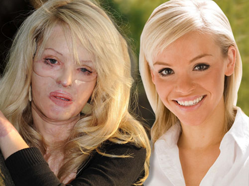 Katie trước và sau khi bị tạt acid