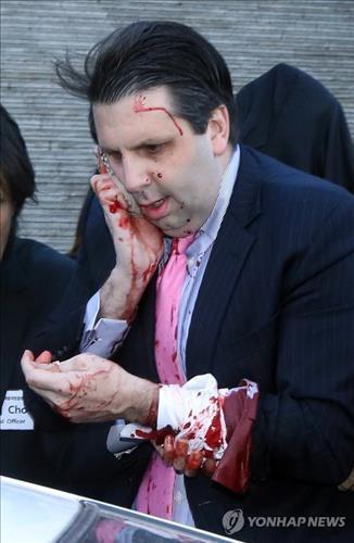 Đại sứ Mỹ Lippert bị tổng cộng 5 vết chém, nặng nhất là vết trên mặt. Ảnh: Yonhap