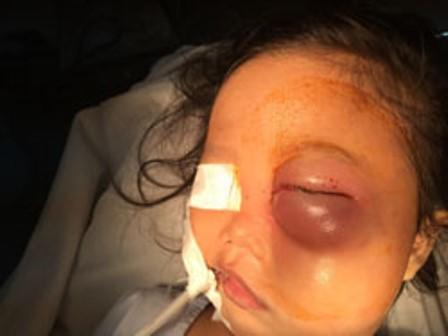 Con mắt nhiễm trùng của bé gái trước khi phẫu thuật.