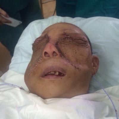 Bệnh nhân Lý Mùi Xiên trước và sau phẫu thuật