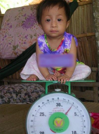 9 năm về trước, Trúc Ly chỉ cân nặng đúng 3kg, dù đã 5 tuổi. Ảnh: Công Tuấn