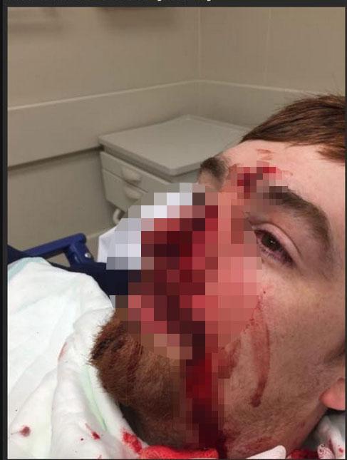 Nạn nhân được đưa đến bệnh viện vì bị thương nghiêm trọng. Ảnh: Deathandtaxesmag