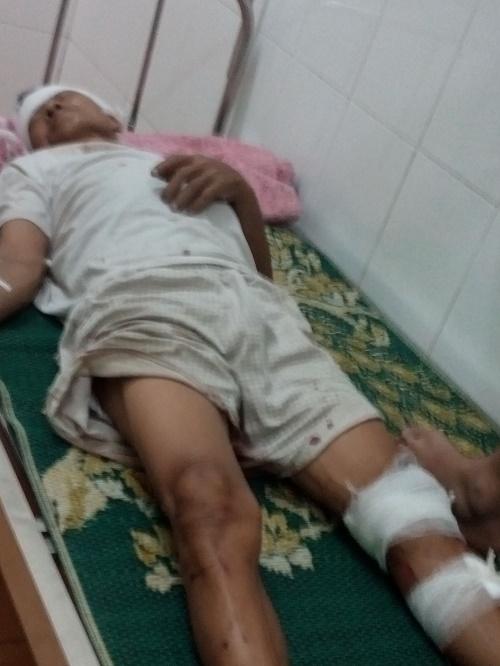 Ông Đố bị gây thương tích phải điều trị tại bệnh viện