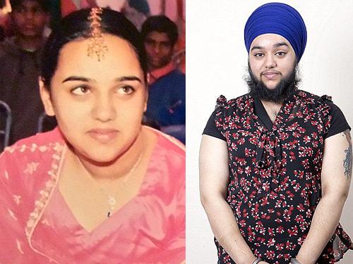 Harnaam Kaur lúc chưa nuôi râu và hiện tại