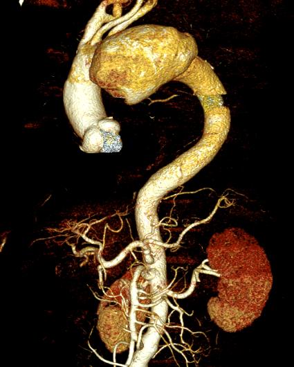 Túi phình quai động mạch khổng lồ suýt vỡ của bệnh nhân.