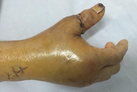Bàn tay nạn nhân sau khi đã nối ngón tay thành công