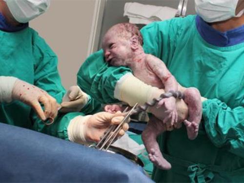 Chậm cắt rốn khiến trẻ nhận được máu từ nhau thai nhiều hơn (Ảnh MNT)