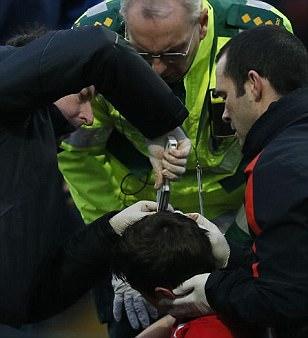 Các bác sĩ dùng thiết bị dặc biệt cố định vết rách trên đầu McNair