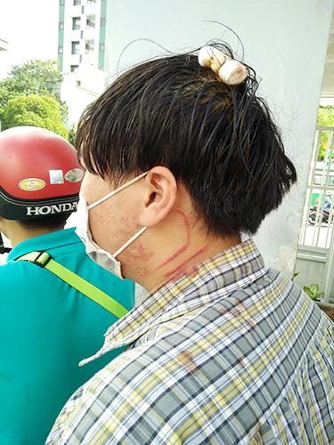 Trong lúc xô xát, một sinh viên bị thương