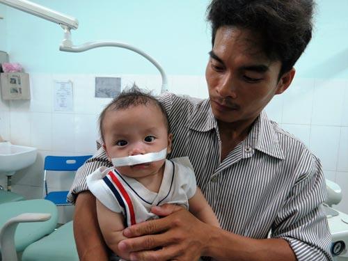 Bé tươi tỉnh ngay sau cuộc phẫu thuật điều trị sứt môi - hở vòm bằng phương pháp gây tê tại Bệnh viện Nhi Đồng 1