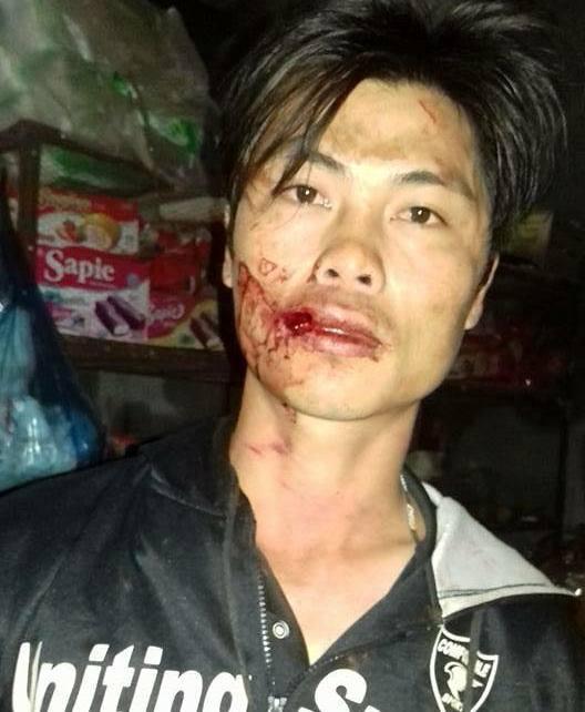 Ông Sang cho rằng bị đánh bầm dập sau khi quay cảnh công an xã chặm xe. Ảnh người dân cung cấp
