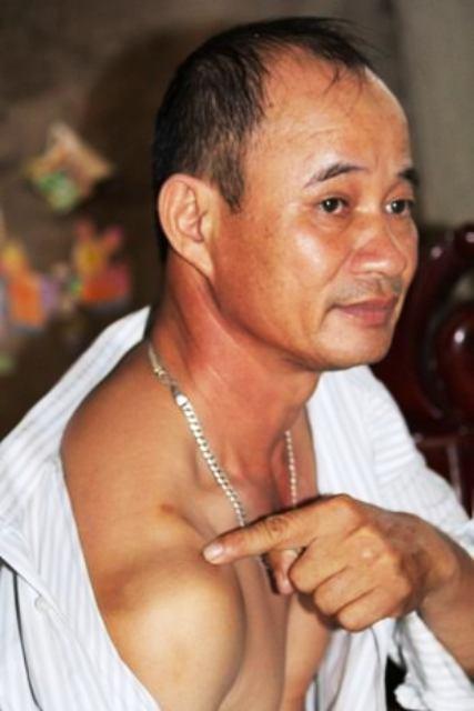 Vết sẹo trên vai ông Trần Văn Hoàn gần 1 tháng sau khi bị chém