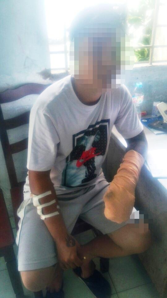 Anh Nguyễn Thành Nhân chưa hết bàng hoàng sau vụ đâm chém