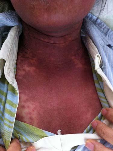 Một trường hợp bị dị ứng thuốc đã được điều trị tại BV Đại học Y Dược TP HCM