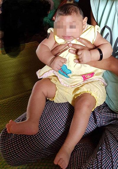 Bé gái bị hội chứng đầu nhỏ nghi do virus Zika Ảnh: Khánh Anh