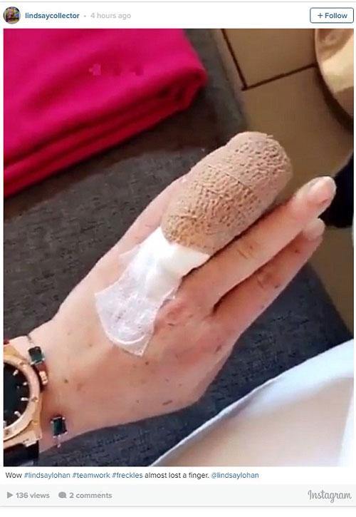 Lindsay và ngón tay bị thương