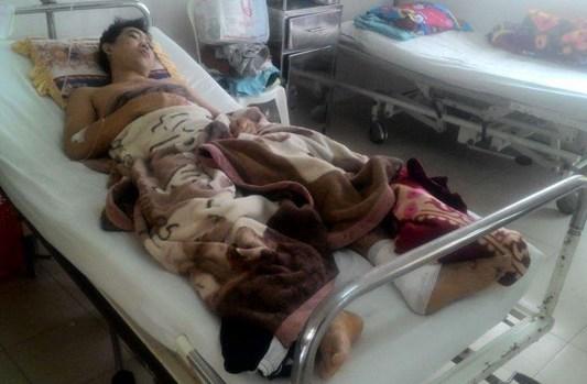 Nạn nhân Lê An Vang đang được cấp cứu tại Bệnh viện đa khoa Khánh Hòa