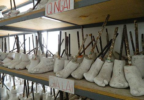 Những chân giả của các bệnh nhân được lưu giữ tại xưởng giày.