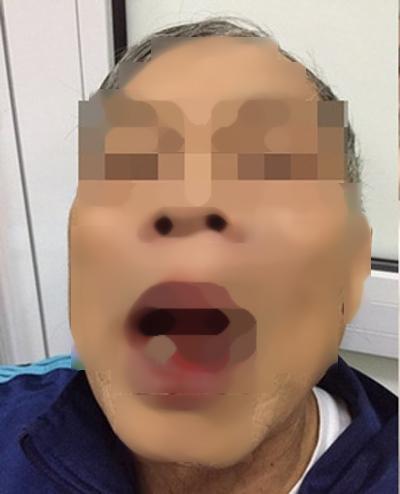 Tiến sĩ Nguyễn K. bị rách môi do bị hành hung