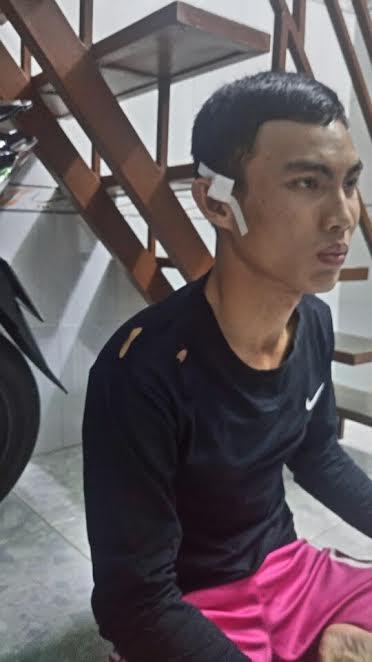 Anh Thắng bị vết thương phải băng bó ở mang tai