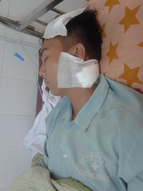 Nạn nhân Bùi Thái Hòa đang điều trị tại bệnh viện