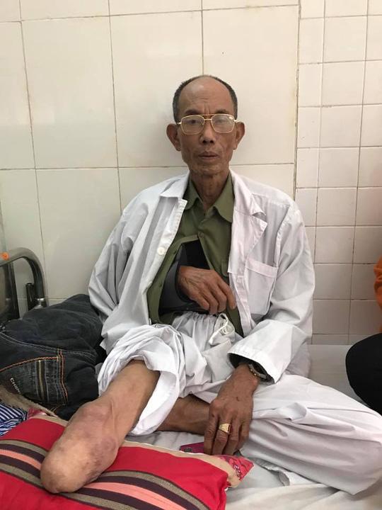 Cựu binh Hoàng Tiến Vin hiện vẫn phải đang nằm điều trị tại khoa Chấn thương chỉnh hình, Bệnh viện Quân y 103 - Ảnh: Văn Duẩn