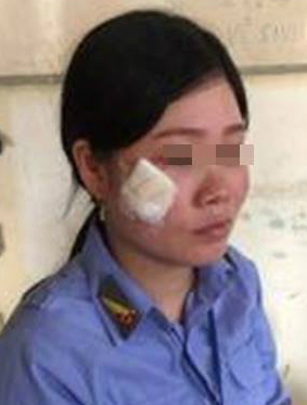 Nữ nhân viên gác tàu N.T.H.H. bị tài xế ô tô đánh bị thương - Ảnh cắt từ clip