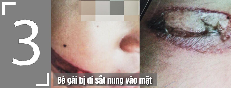 [eMagazine] - 5 vụ bạo hành trẻ em gây phẫn nộ ở Việt Nam - Ảnh 9.