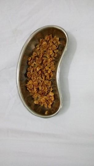 Lấy hơn 70 gram hạt sơ-ri nảy mầm trong hậu môn bé trai - Ảnh 2.