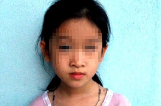 Mắt trái bé P.A. bị mù vĩnh viễn do bị bạn ném thước vào mặt tại trường