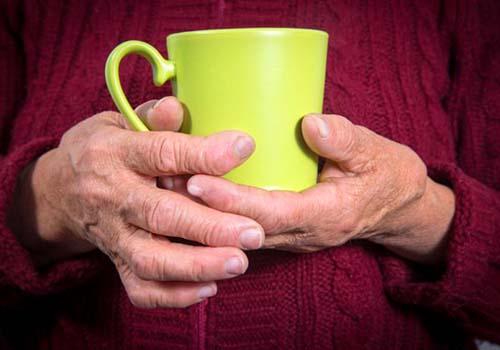 Thấp khớp là bệnh từ hệ miễn dịch, gây viêm khớp và thường bắt đầu ở tay và chânẢnh: MEDICAL NEWS TODAY