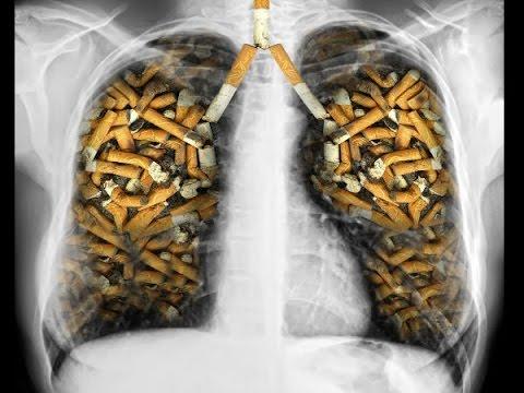 Khói thuốc lá là nguyên nhân của nhiều căn bệnh ung thư, trong đó có ung thư phổi