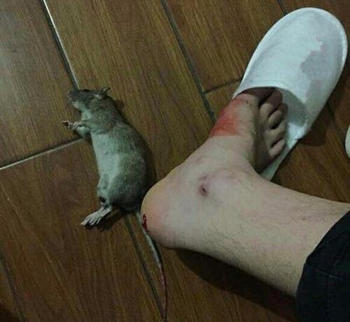 Nhập viện cấp cứu vì chuột cắn - Ảnh 1.
